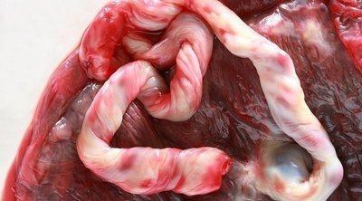 Cómo prevenir que el desprendimiento de placenta