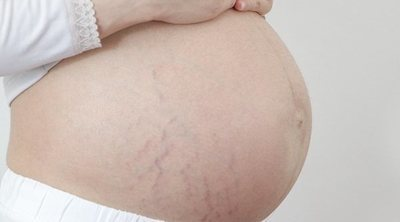 Por qué tus embarazos NO serán iguales